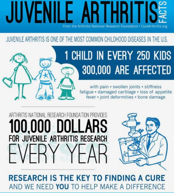 Leg length difference can be caused my juvenile arthritis.